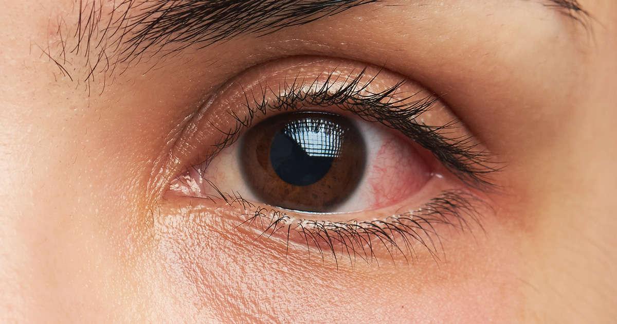 Ojo irritado por una alergia ocular
