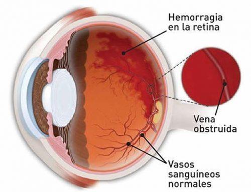 Oclusión de vena retiniana