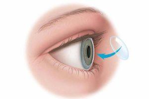 ¿Que es el transplante de cornea?