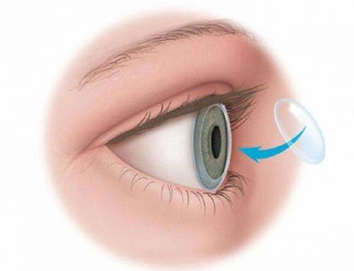 transplantes de córnea