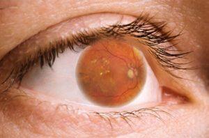 Retinopatía Diabética: Una de las causas de la ceguera