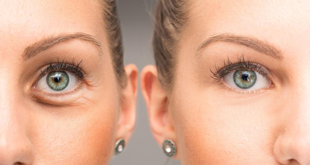 cómo eliminar las bolsas de los ojos sin cirugía
