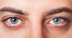 Conjuntivitis: síntomas y tratamiento