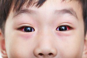 Conjuntivitis en niños: Conozca la gravedad de esta enfermedad