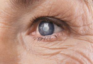 Síntomas del glaucoma y su tratamiento