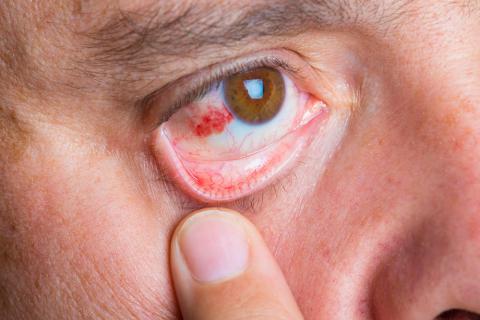 Hombre con abrasión corneal