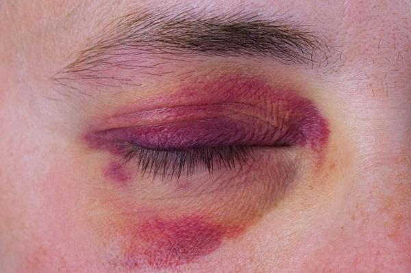 Hombre con hematoma en el ojo