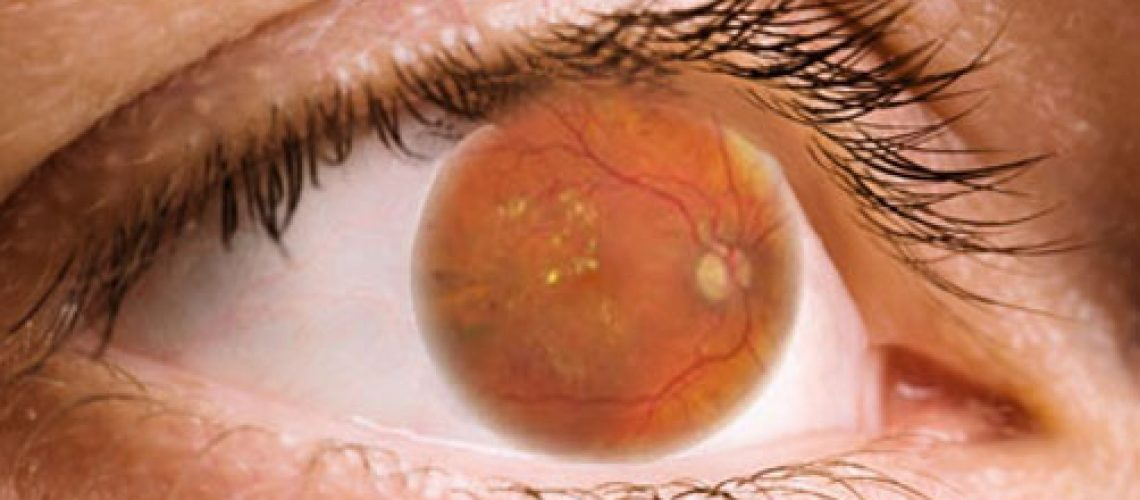 Retinopatia-Diabetica-Diabetes-Ojos